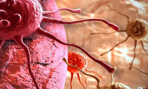 Perché nascono i tumori? Il nostro parere – DC 2.0